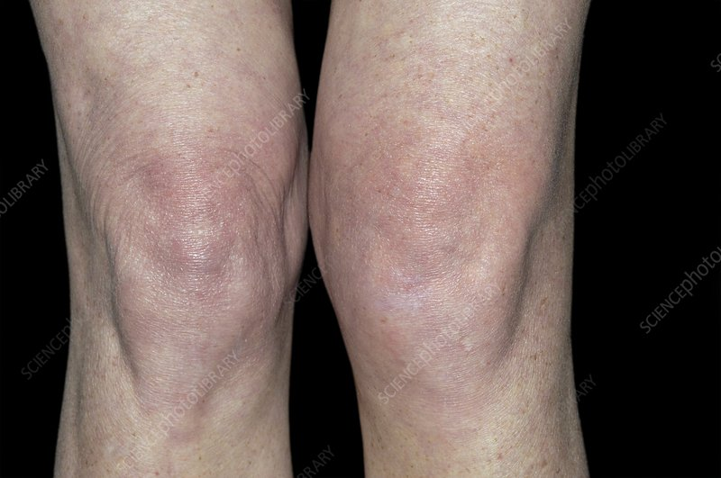 Swollen joint of the knee after a fall