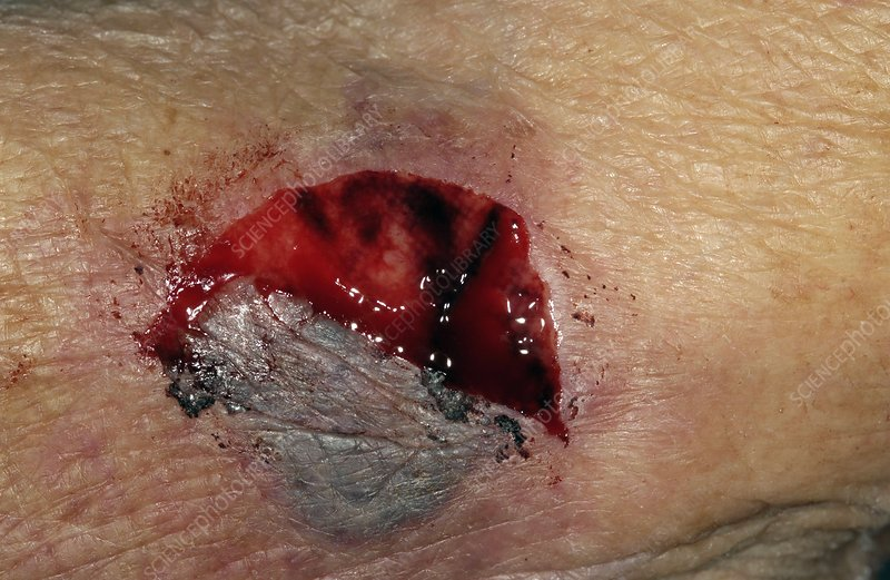 Flap laceration on the elbow