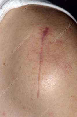 Scar from shoulder decompression