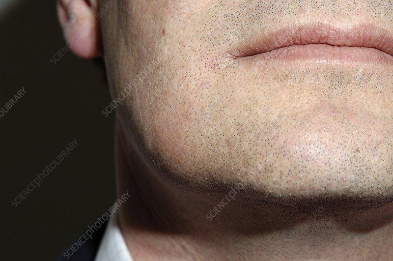 Submandibular gland swelling