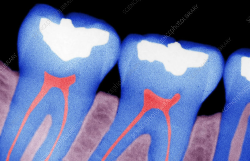 X-ray of dental fillings, Tooth decay