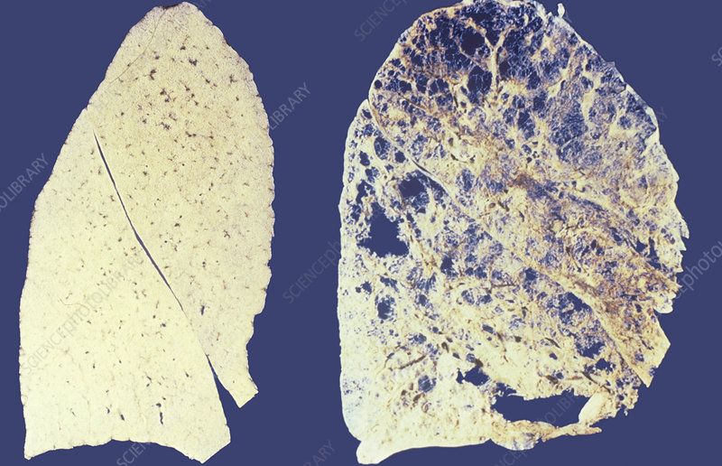 Lung sections of non-smoker and smoker