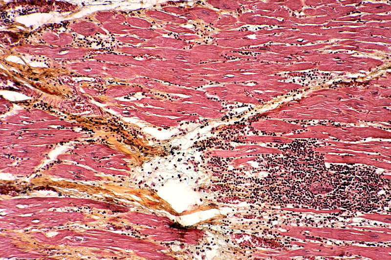 Chagas disease in cardiac muscle of a pat