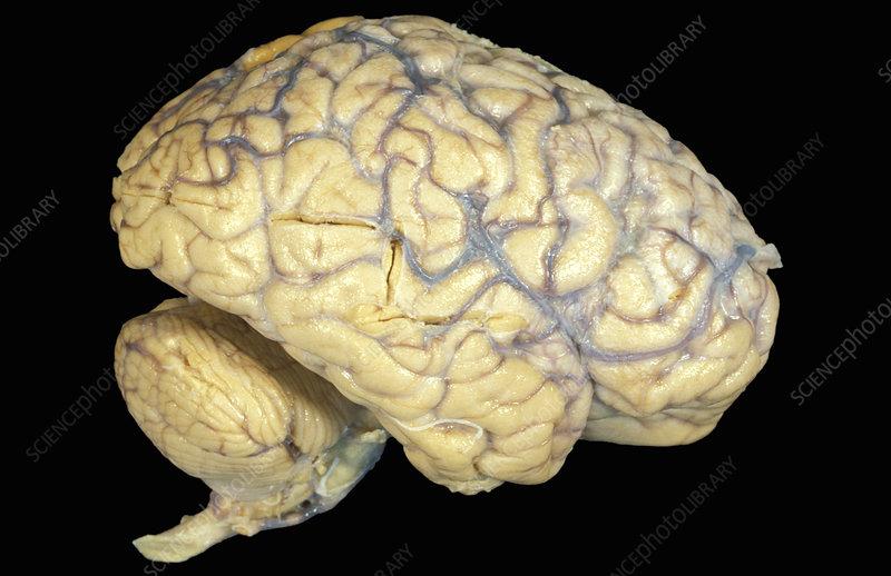 Human brain, blood vessels, vasculature