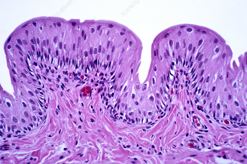 Transitional epithelium in the bladder