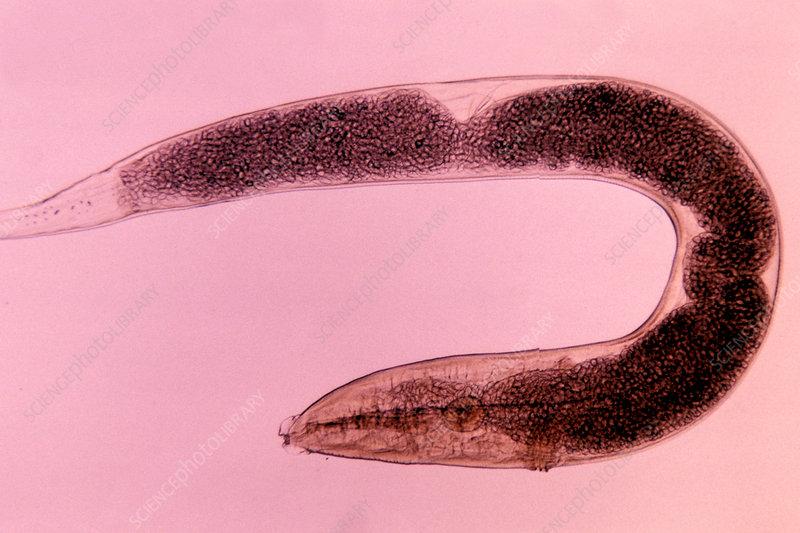 Human Pinworm (Enterobius vermicularis)