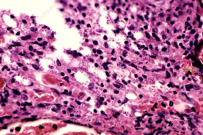 Leishmania braziliensis Protozoa