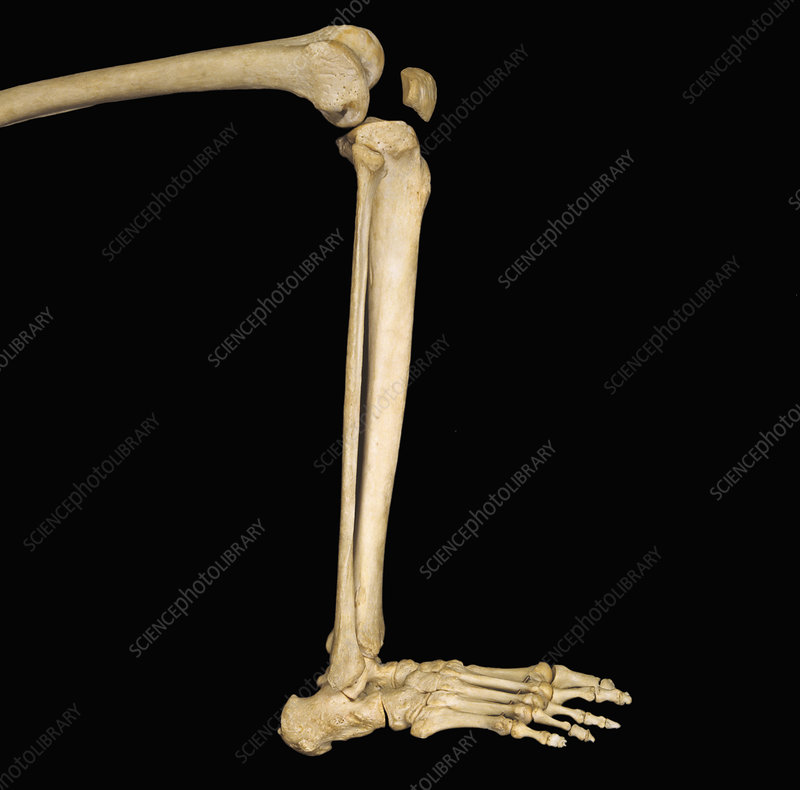Human Lower Leg Bones Stock Image C0054954 Science Photo Library