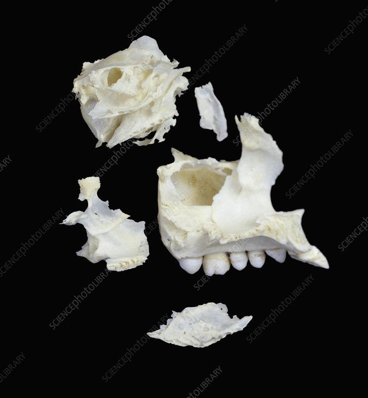 bones of skull. Bones of the front of the