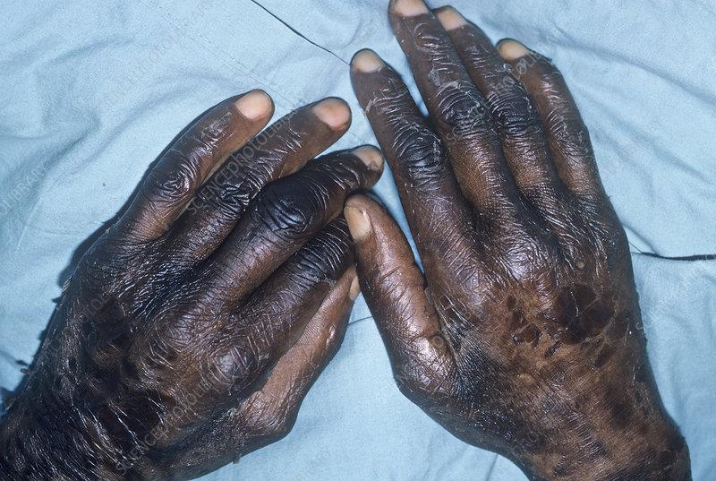 Pellagra symptoms on human hands