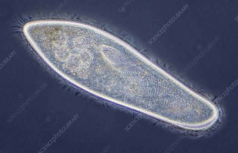 Paramecium caudatum - Phase Contrast X250