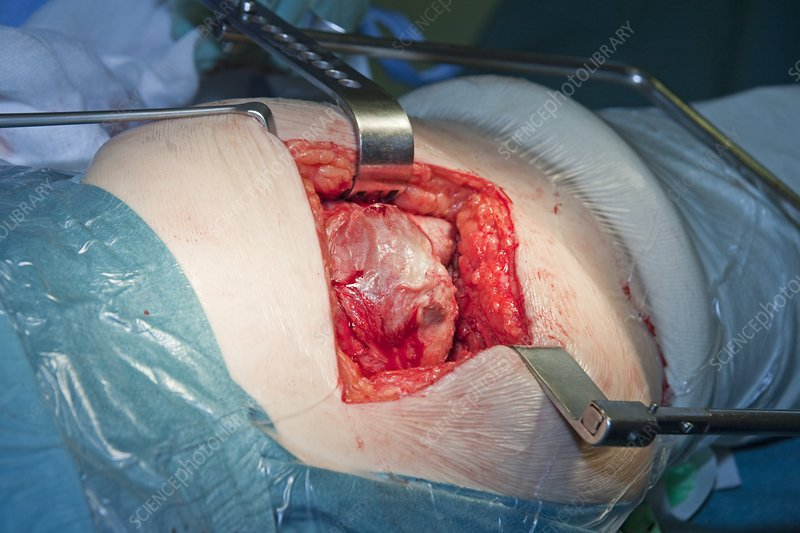 Hip Replacement Surgery >> Failed Hip Replacement Surgery Stock Image C005 6439 Science