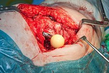 Failed hip replacement surgery