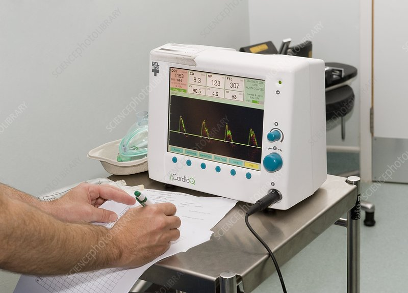 Transoesophageal Doppler ultrasound