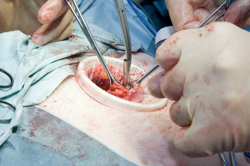 Laparoscopic colon cancer surgery