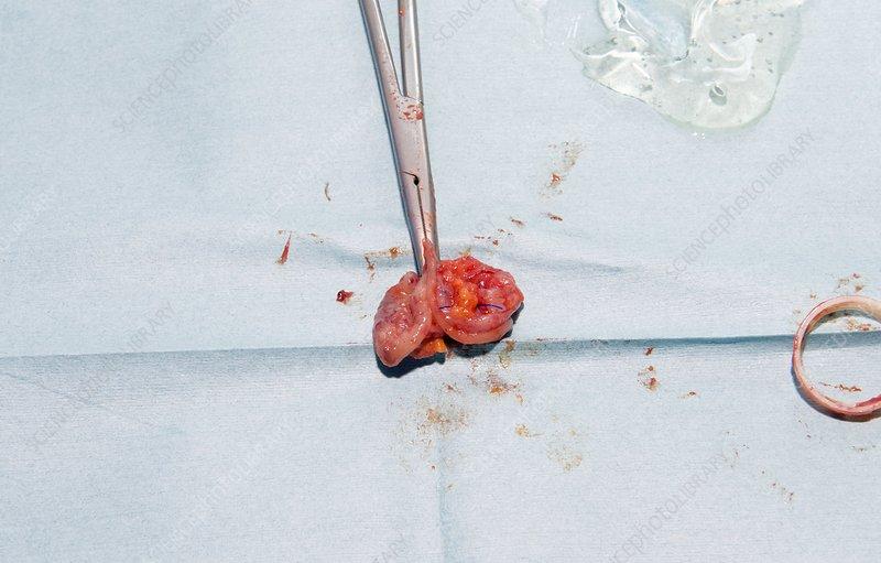 Laparoscopic colon cancer surgery