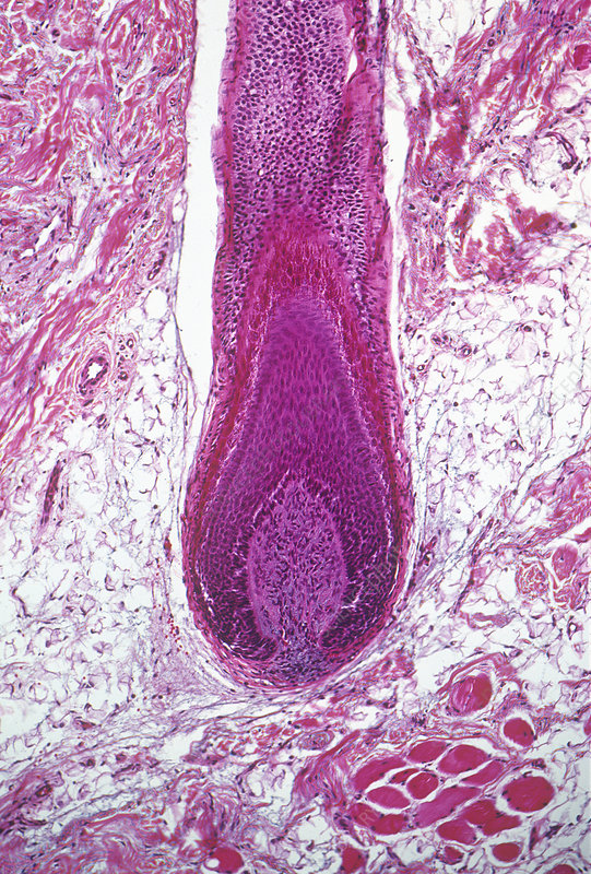 Human hair follicle section with root. LM
