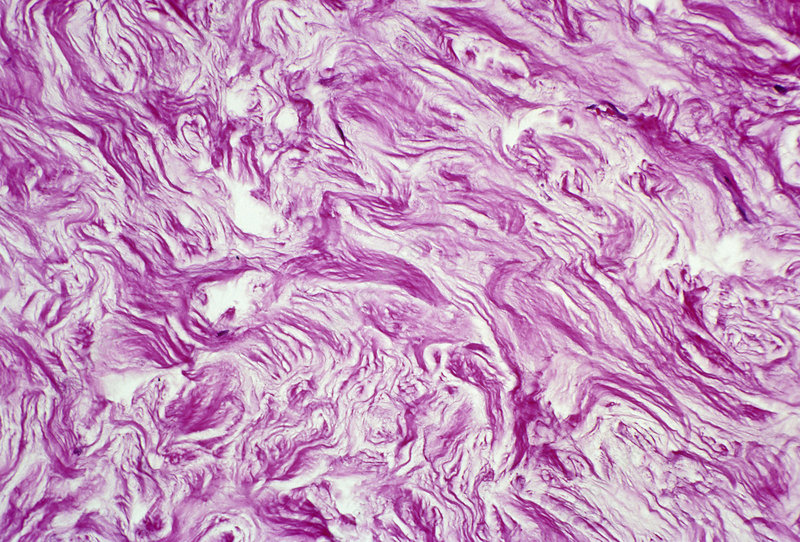 Collagen in human skin. LM