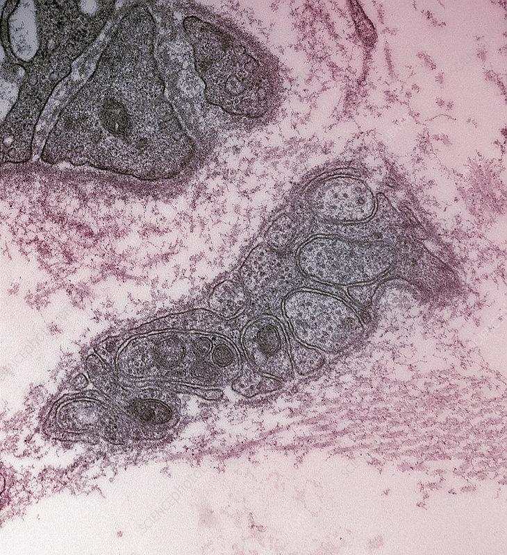 Human atrium unmyelinated nerve. TEM X48
