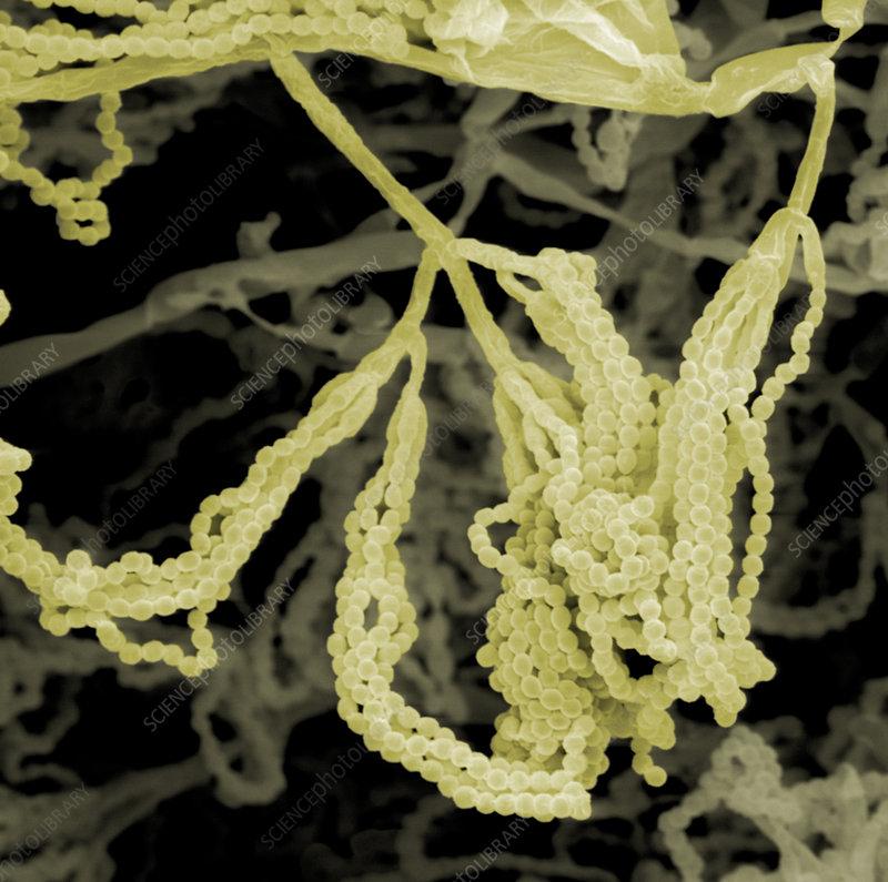 Penicillium notatum Mold sporangia. SEM