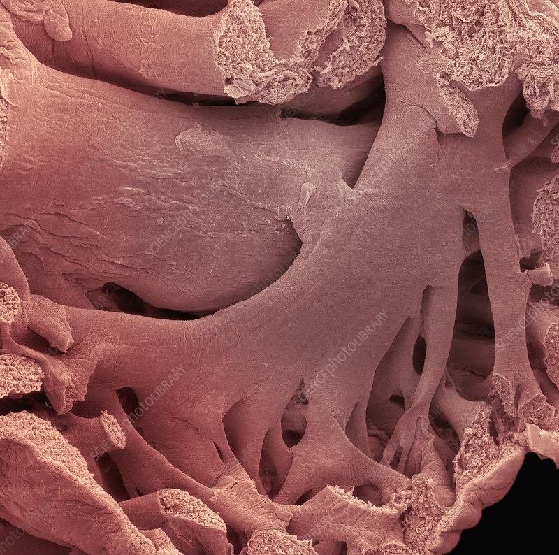 Pectinate muscle in atrium of heart. SEM