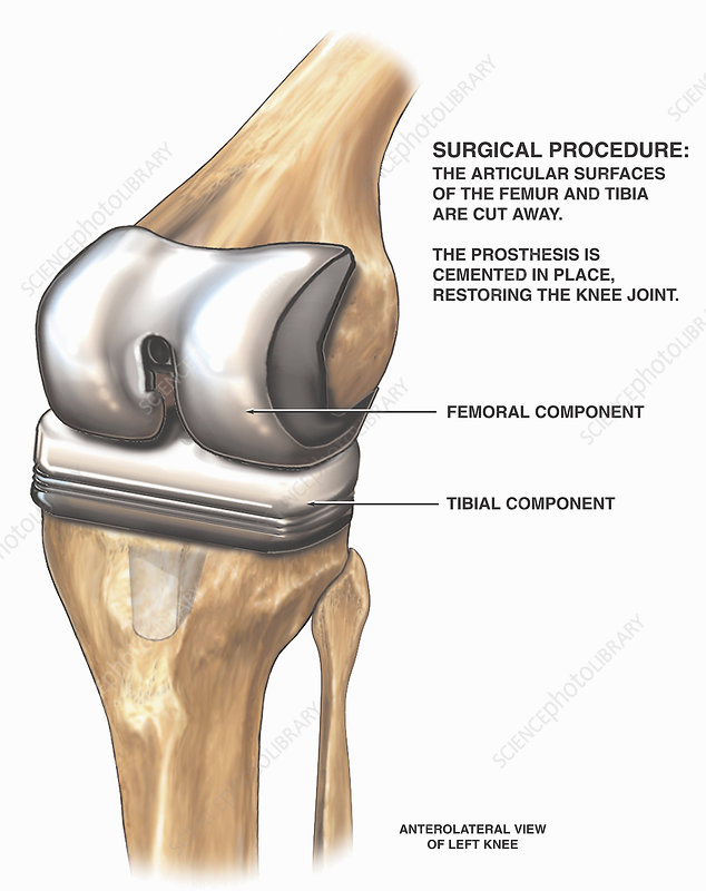 Medical exhibit knee joint replacement