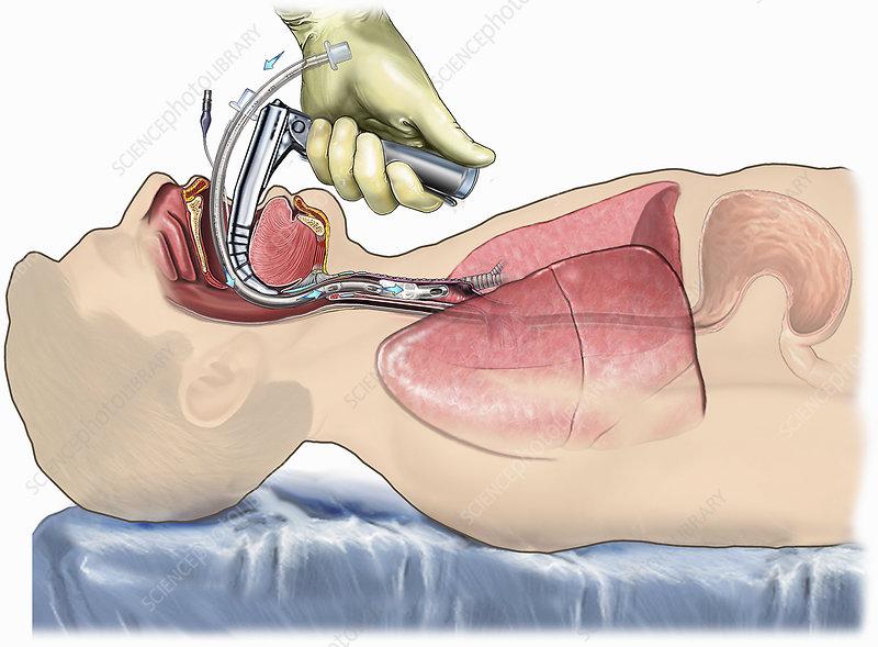 Laryngoscopic Endotracheal Intubation