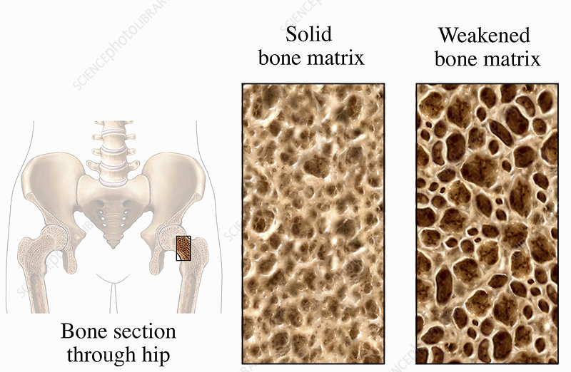 Illustration of osteoporosis