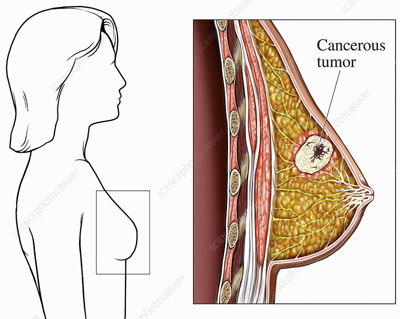 Illustration of a breast cancer tumor