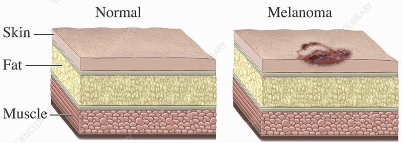 Malignant Melanoma Skin Cell Cancer