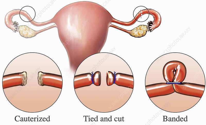 Illustration fallopian tubal ligation