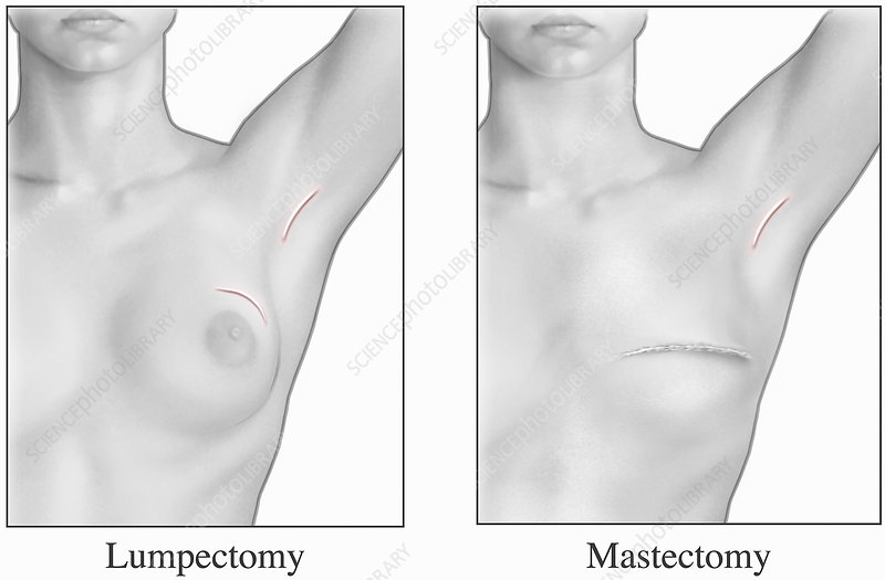 Illustration, appearance human breast