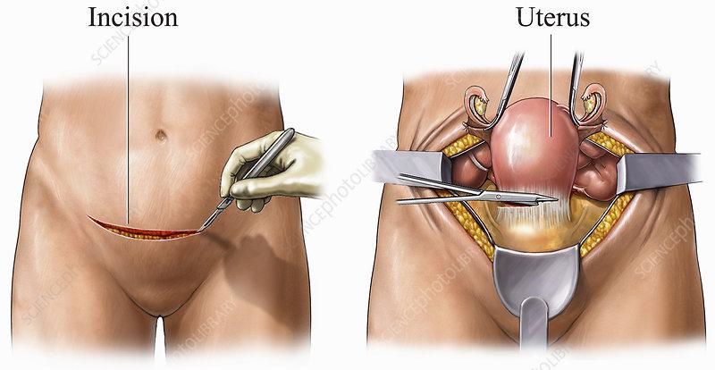 Medical exhibit, abdominal hysterectomy