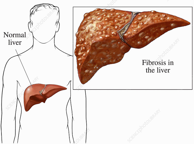 Illustration of cirrhosis of the liver