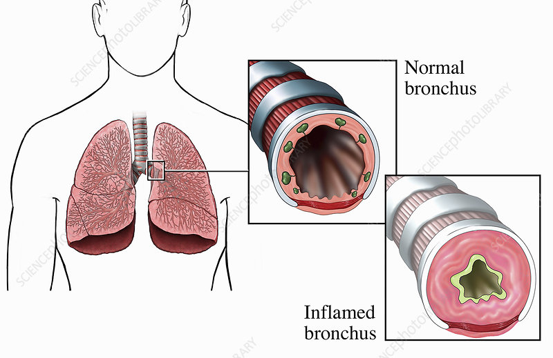 Normal and inflamed bronchi