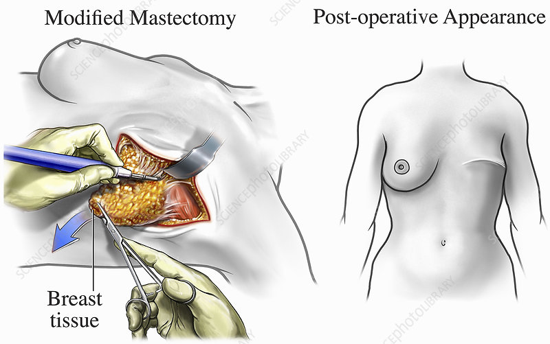 Illustration of breast cancer surgery