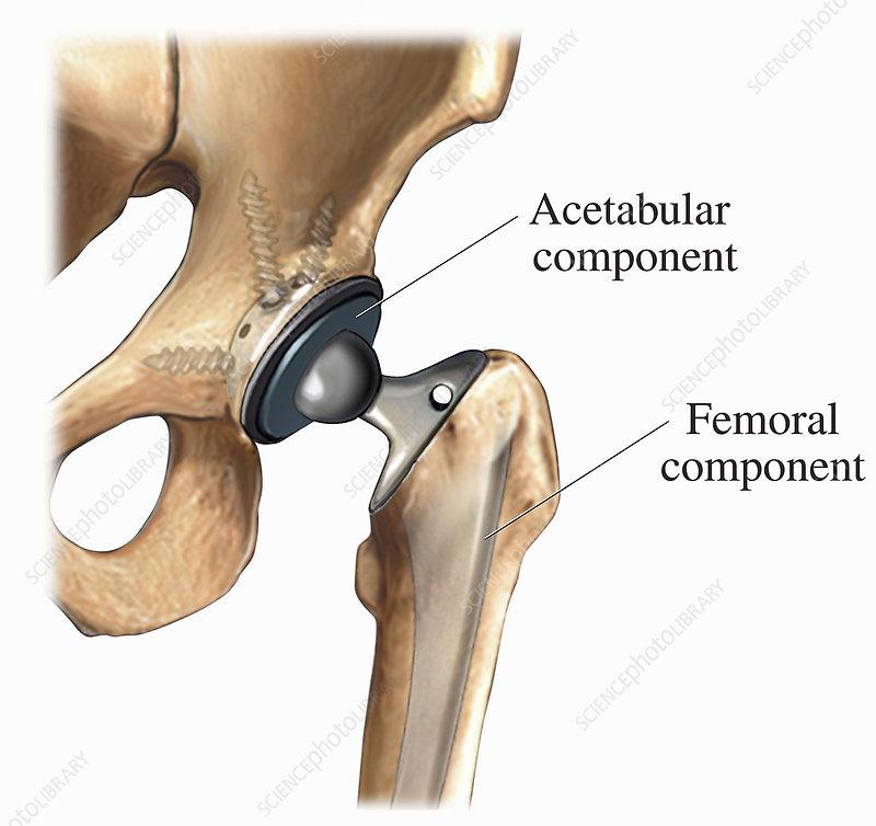 Medical illustration of a hip prosthesis