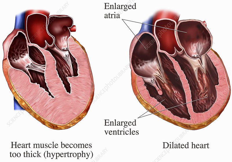Medical illustrations of heart muscle