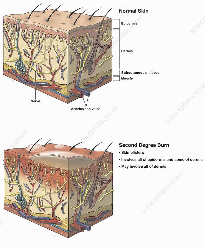 Illustrations normal, burned skin injury
