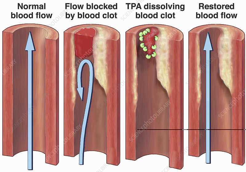 Normal blood flow and clot