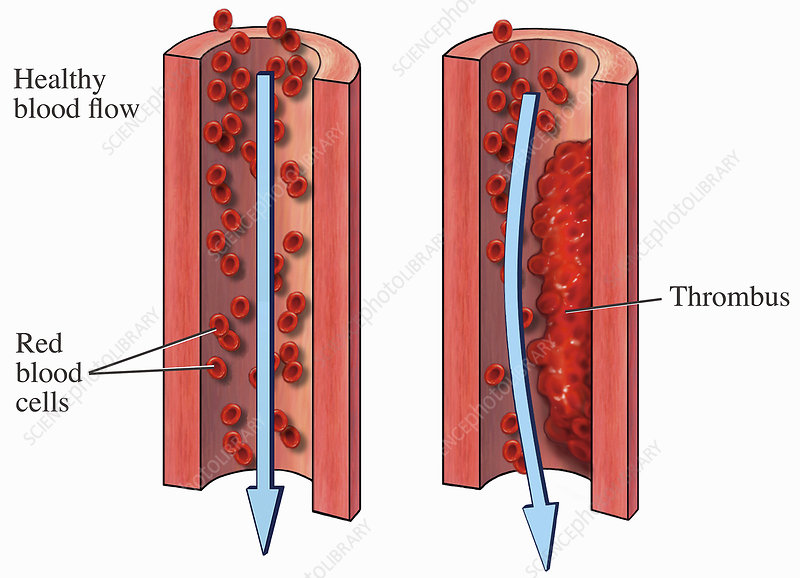 Illustrations normal blood flow, thrombus