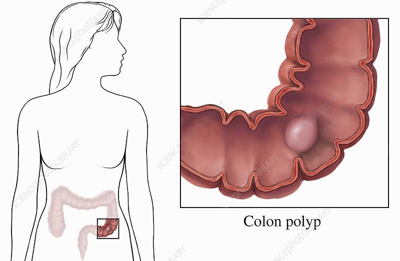 Biomedical illustration of a colon polyp
