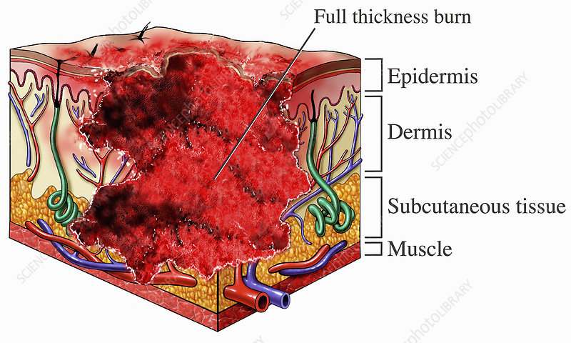 Illustration of third degree skin burns