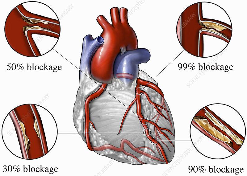 Illustration, heart, coronary disease