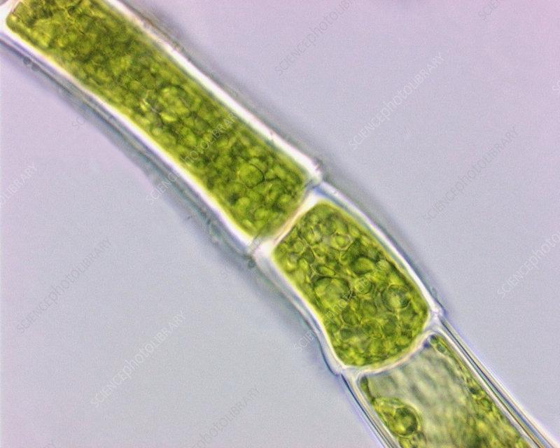 Green Algae Oedogonium