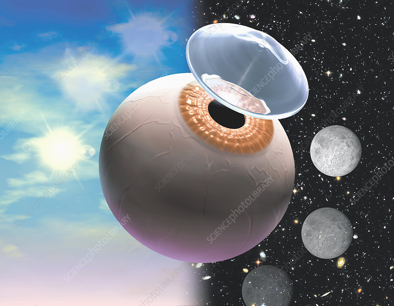 Artists conception of contact lenses