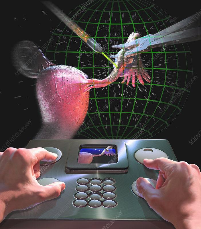 Futuristic surgery of the fallopian tubes