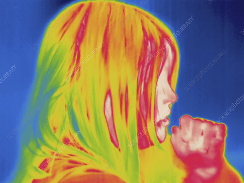 Thermogram, Child coughs, temp variation