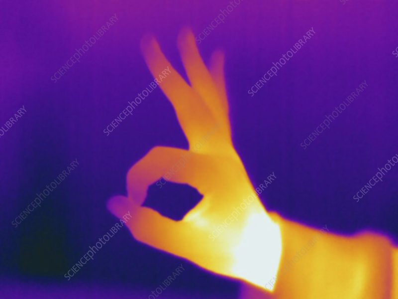 Thermogram, female making 'OK' hand sign