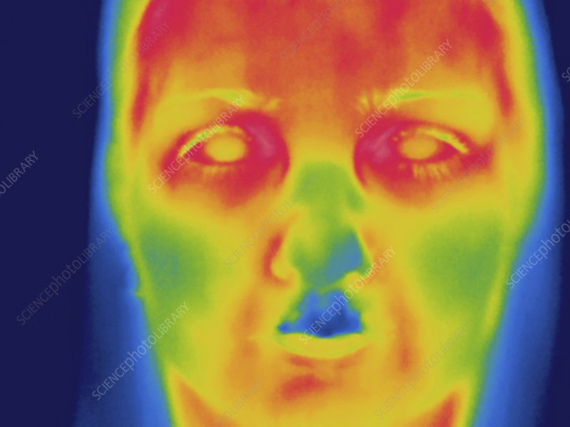 Thermogram, face, temperature variation
